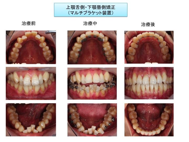 上顎舌側・下顎唇側矯正症例