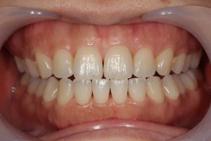 歯の着色除去後